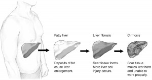 Liver damage from alcohol