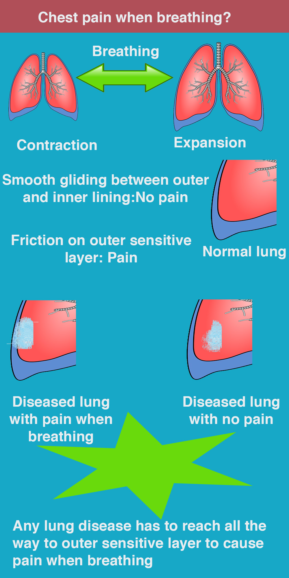 Chest pain when breathing infographic