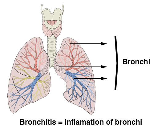 bronchitis symptoms inflammation of bronchi