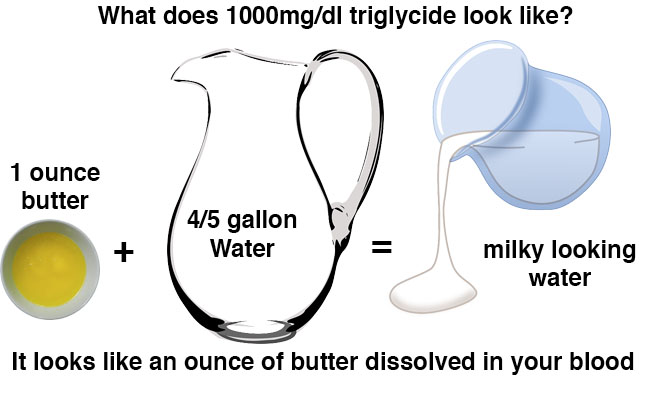 high triglyceride milky blood