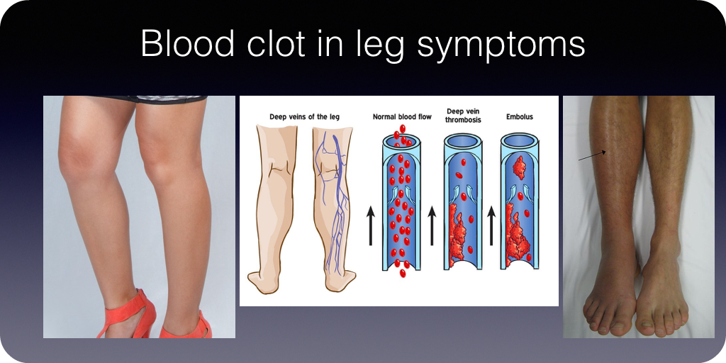 Blood clot symptoms in leg