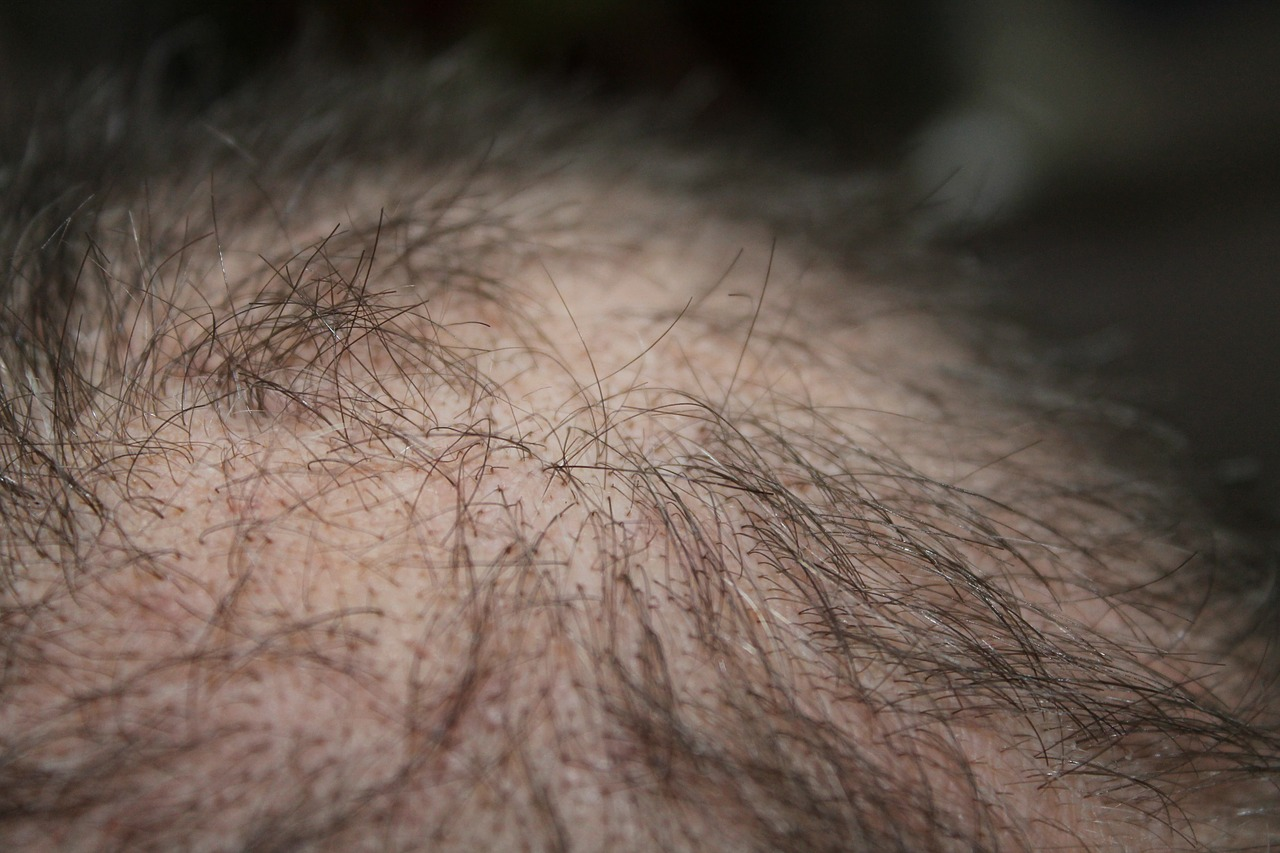 picture iron deficiency hair loss